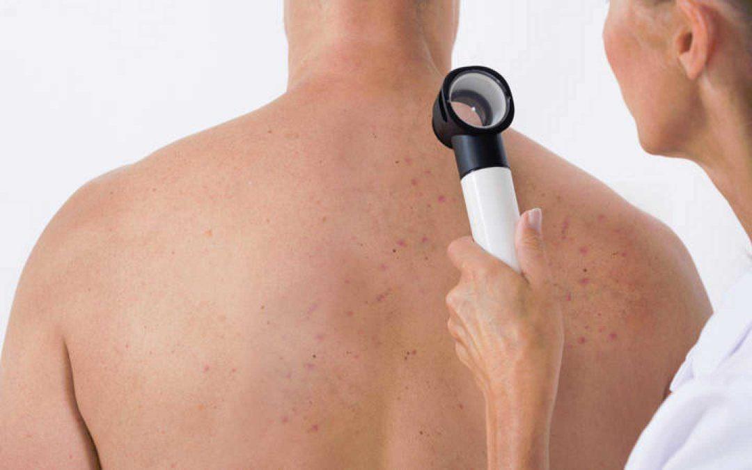 LALCEC: Mirá el cronograma de atención de la nueva campaña de prevención de cáncer de piel