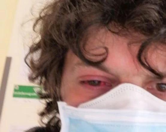 Un pampeano radicado en Italia fue al hospital por una conjuntivitis y le diagnosticaron coronavirus