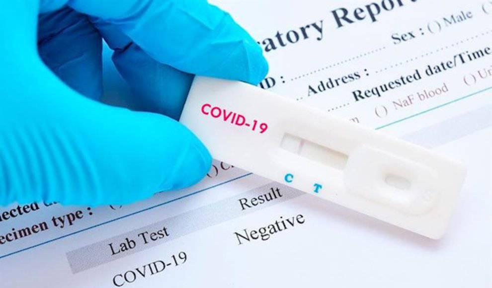 La semana que viene se pondrán en marcha testeos para detectar anticuerpos a ciudadanos en La Pampa