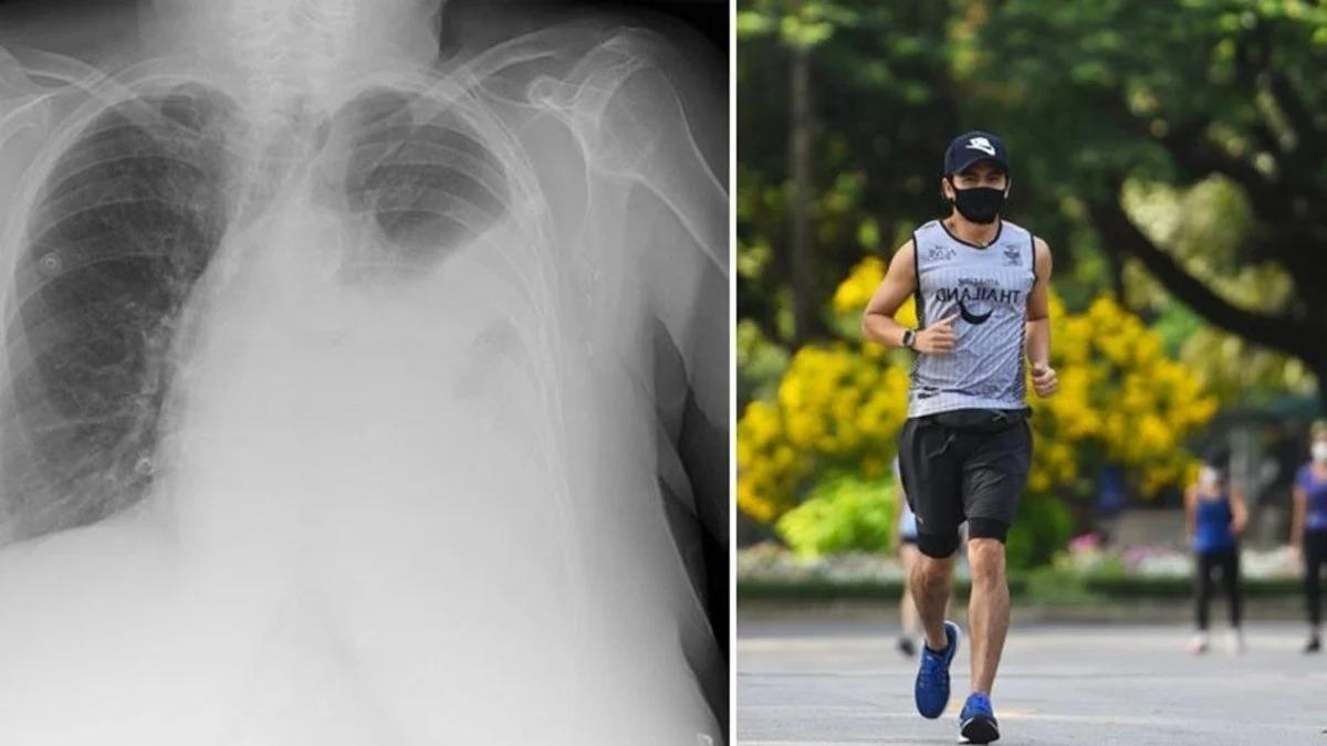 China: «Su pulmón colapsó», la dramática consecuencia que sufrió un joven que salió a correr con barbijo