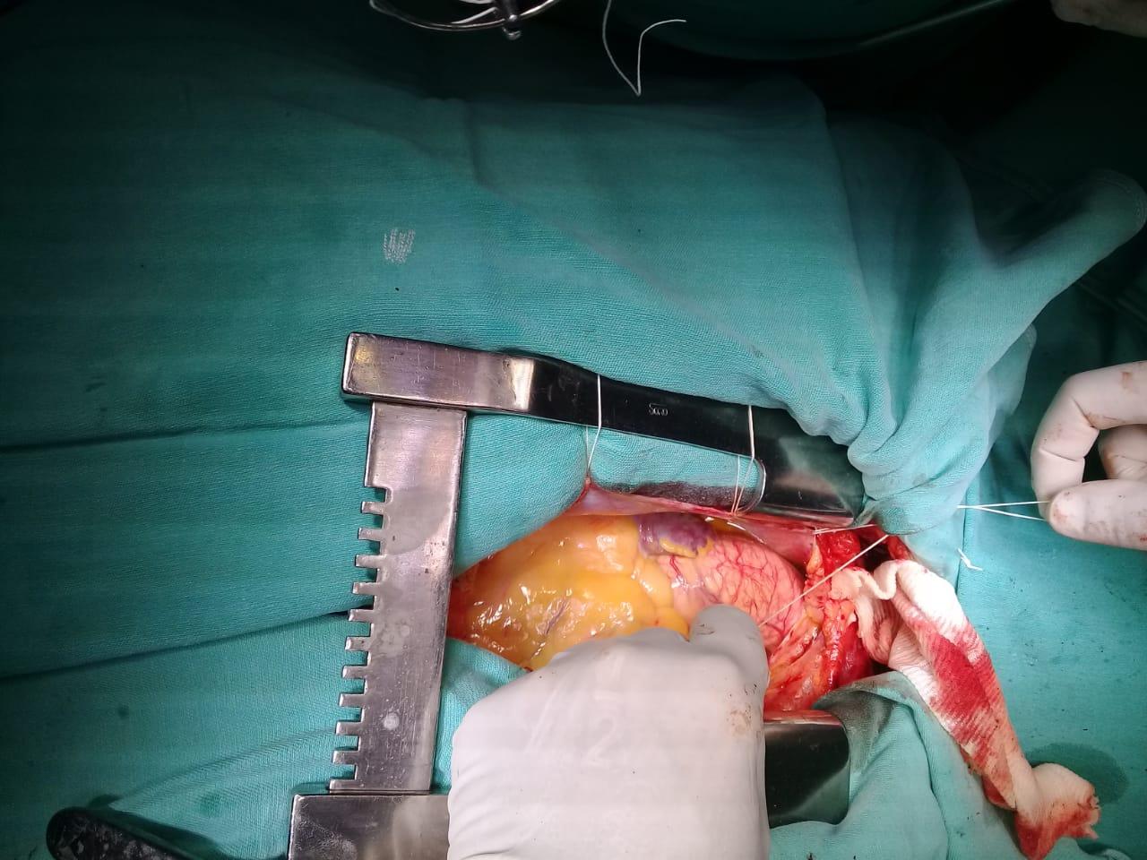 Hace un año realizaban el primer trasplante de tejidos cardíacos en La Pampa